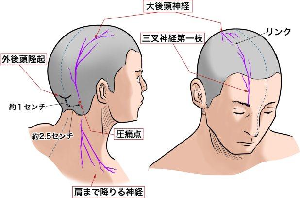 後頭神経痛(元サイズ)