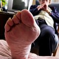Bunion with gout