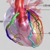 【川崎病4】後遺症の冠動脈瘤は、どのように形成されるのか