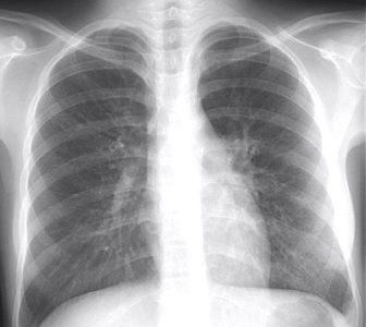 【マイコプラズマ肺炎】2016年の患者数が過去最多に! 重篤な喘息を併発する恐れも・・・その症状と治療法