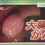 【大腸がん】大腸内視鏡で便秘解消!?大腸がんにならないための最新情報(NHKガッテン)