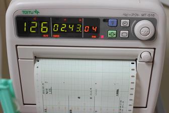 無痛分娩 分娩監視装置
