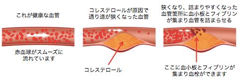 悪玉コレステロールと血管内皮のプラーク